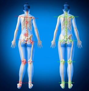 semelles orthopediques