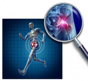 Sports Hip Injury